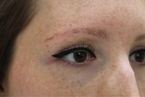 eyebrow-treatments