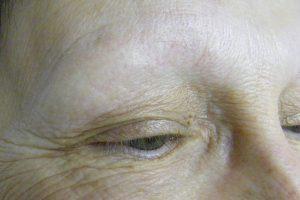 micro-pigmentation