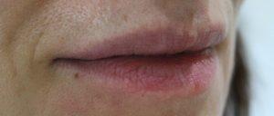 lips-b